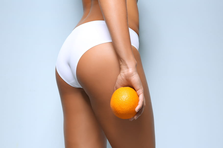 Comment éliminer la cellulite naturellement