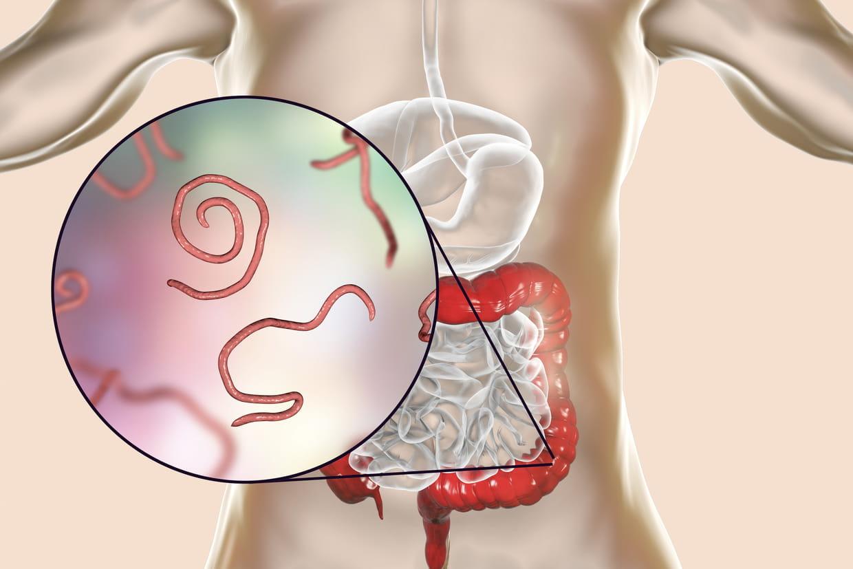 Oxyure : comment savoir si on a des vers intestinaux ?