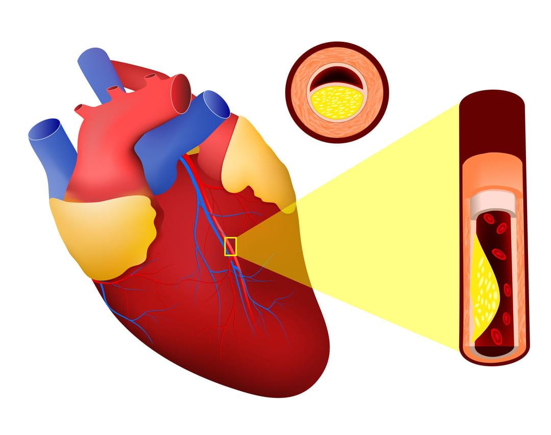 artere femorale bouchee diabetes