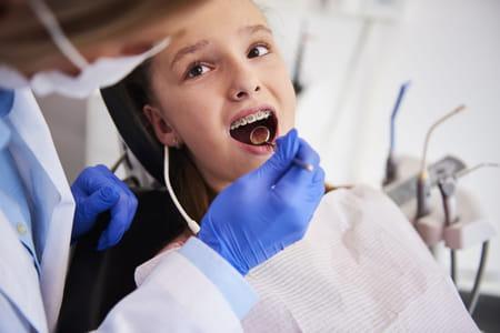 bague dentaire enfant