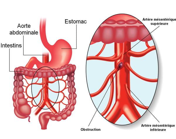 schéma thrombose digestive