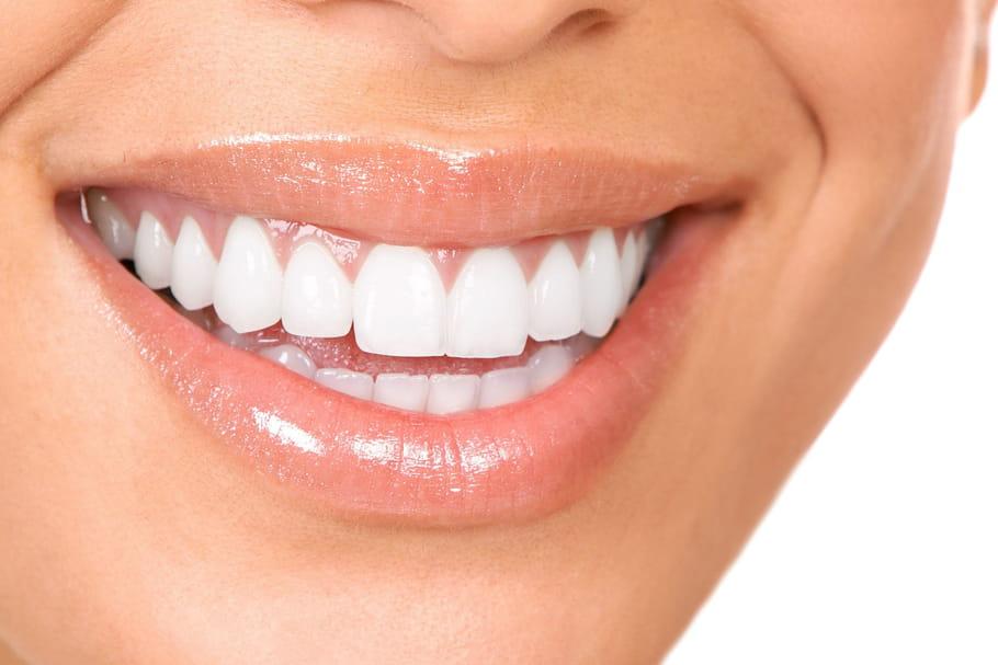 Comment avoir les dents blanches