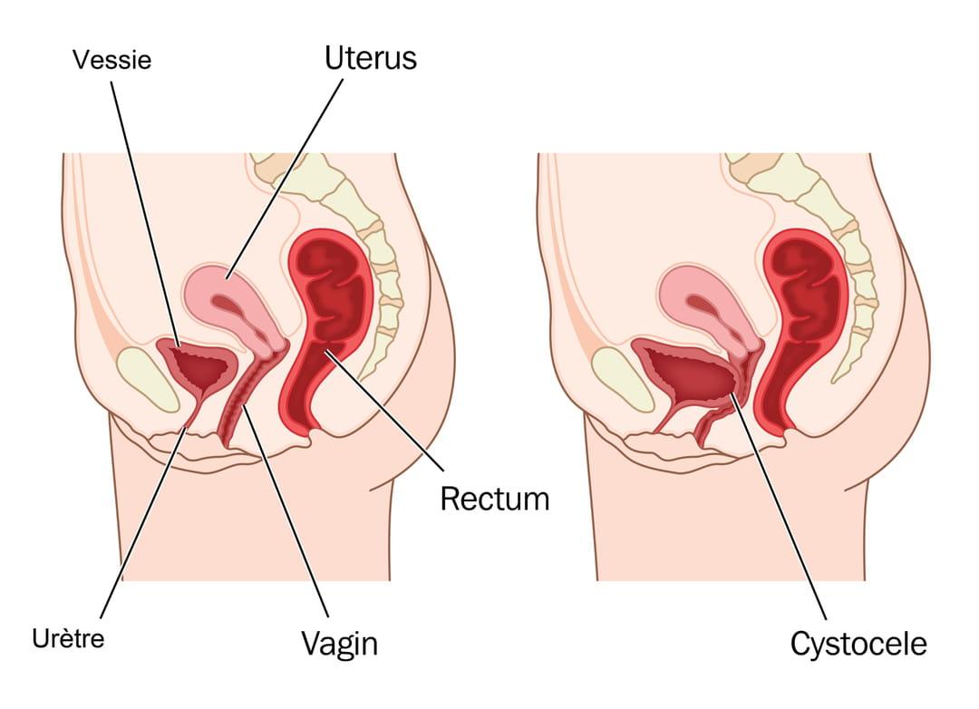 Prolapsus : symptômes et opération d'une descente d'organes