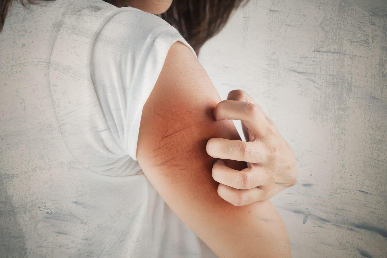Dermatillomanie: définition, causes psychologiques, solutions