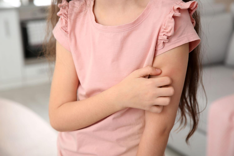 Psoriasis chez l'enfant: âge, aspect, cause, traitements
