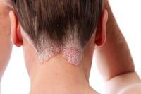 le psoriasis se développe souvent au niveau du cuir chevelu.