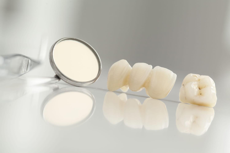 Coût d'une prothèse dentaire: couronne métallique, céramique, appareil