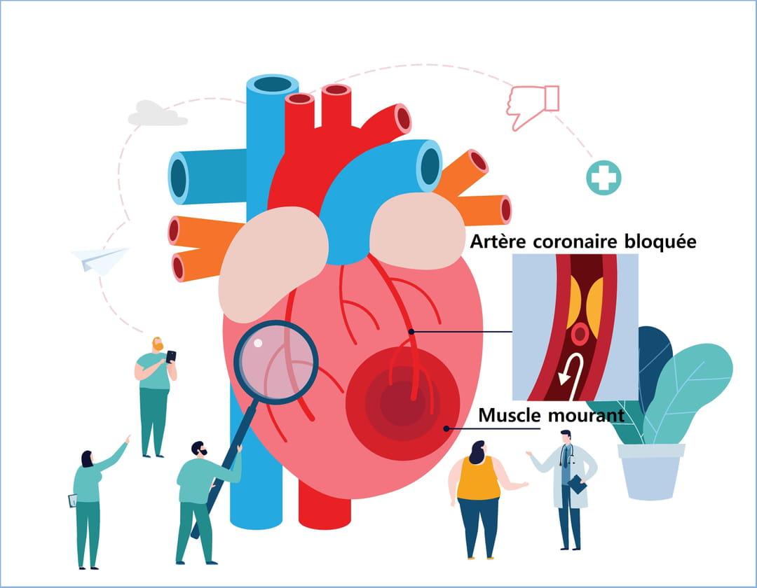 Crise cardiaque : que faire ?