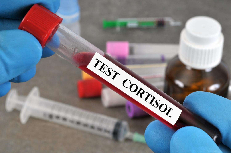 Cortisol bas, élevé dans le sang: normes, que faire?