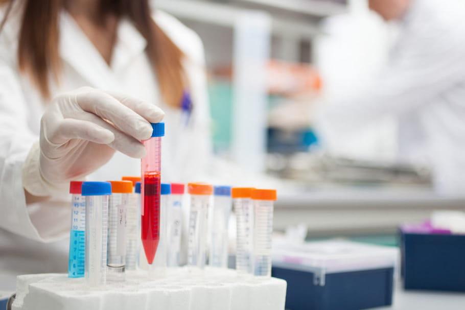 Une thérapie prometteuse pour guérir durablement la leucémie myéloïde chronique
