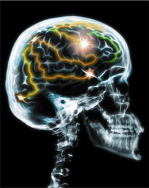 le cerveau du cachalot est le plus lourd de tous les cerveaux de mammifères.