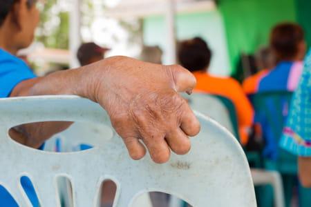 Photo d'une personne atteinte de lèpre