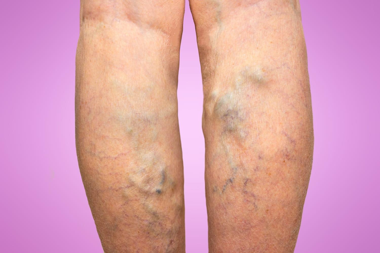 Opération des varices à la jambe: obligatoire ou pas?