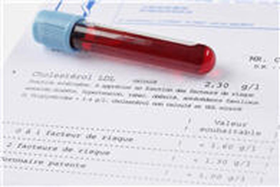 Recherche de germes dans le sang (hémoculture)
