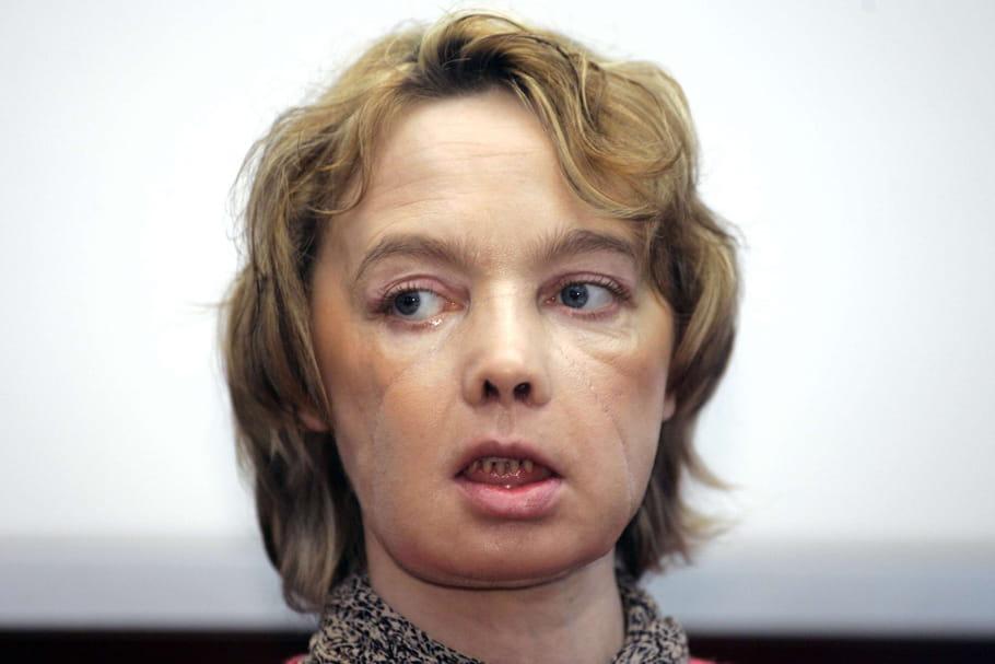 Décès de la première patiente au monde greffée du visage