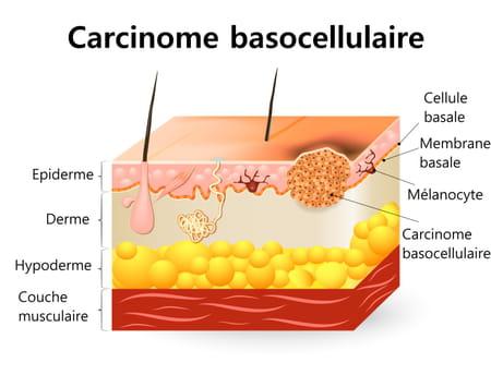 Carcinome basocellulaire schéma