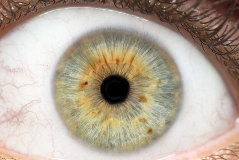 Rétinite pigmentaire: causes, âge, symptômes