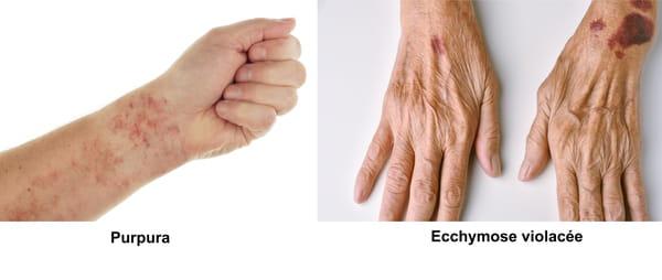Purpura ou pétéchies après thrombose