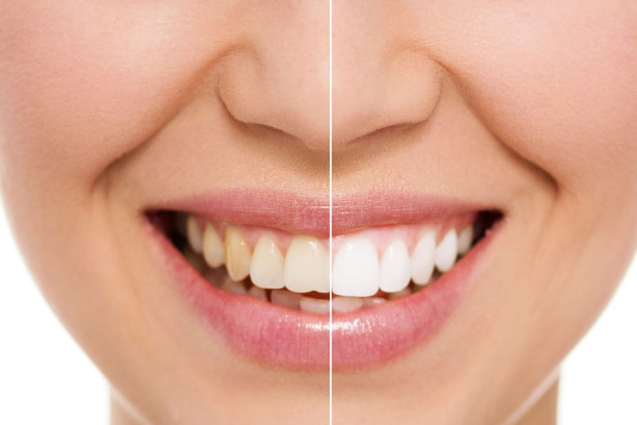 Comment se blanchir les dents
