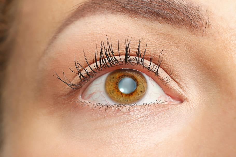 Cataracte: symptômes et opération