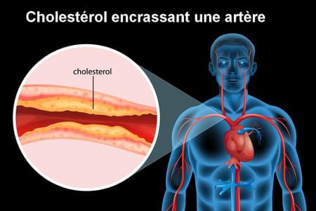 cholestérol artère
