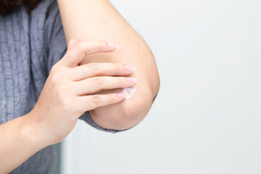 Diprosone: crème phare de l'eczéma et des problèmes de peau