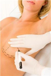 la reconstruction peut être immédiate et avoir lieu juste après la mammectomie.