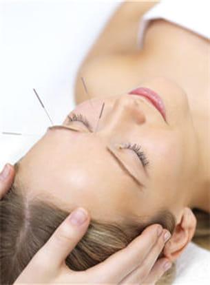 l'acupuncture favorise la relaxation.