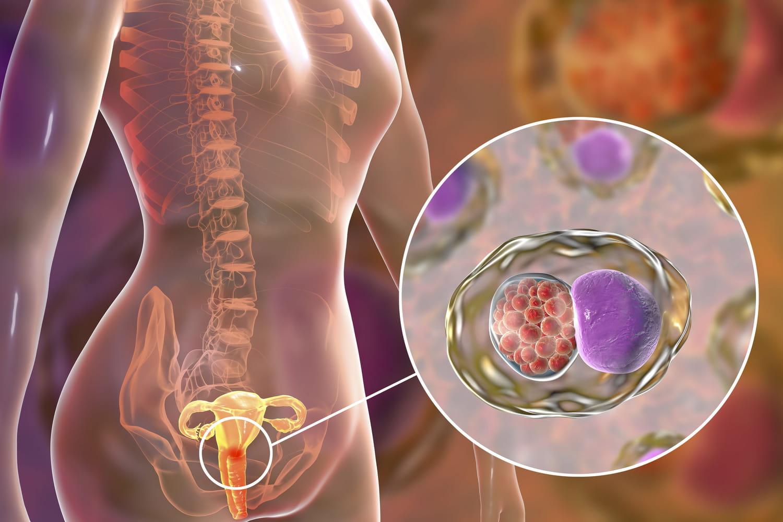 Cervicite: symptômes, causes, quels traitements?