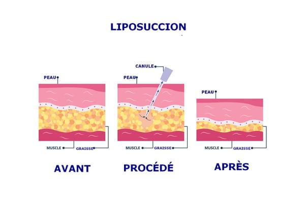 schéma liposuccion de la peau