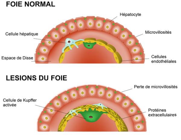 Lésions du foie en cas d'infection (Covid-19 par exemple)