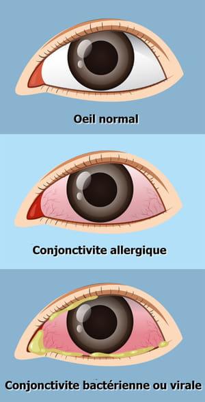 conjonctivite yeux allergie virale bactérienne