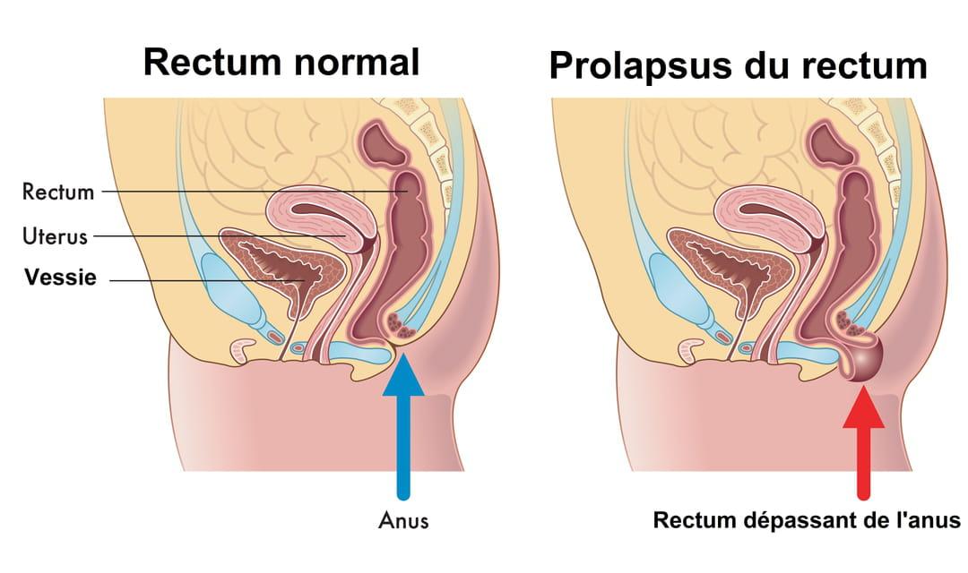 Prolapsus rectal (rectocèle) : causes, traitement, opération