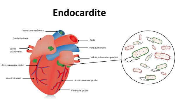 Schéma d'une endocardite et du coeur