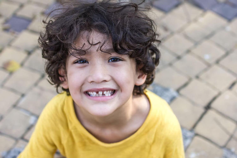 Mon enfant s'est cassé une dent : que faire ?
