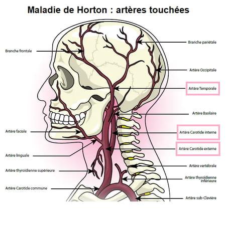 maladie de horton schéma artères touchées