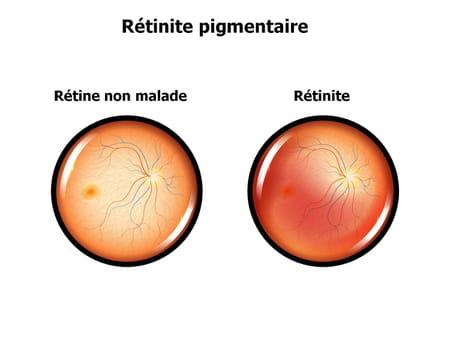 rétinite yeux