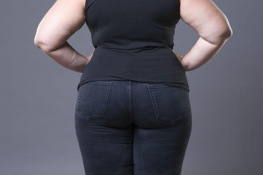 Obésité morbide: IMC, risques, que faire pour en sortir?