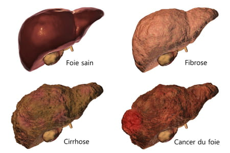 fibrose hepatique cirrhose stade