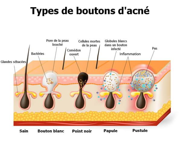 Types de boutons d'acné