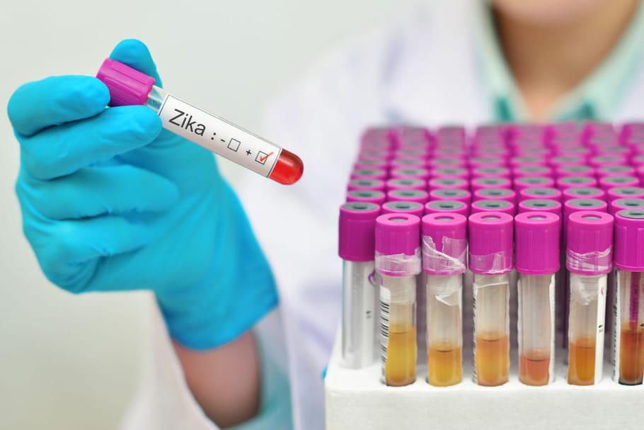 Zika et Guillain-Barré : le lien est confirmé