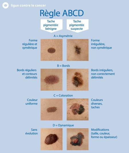 cancer de la peau taches grain de beauté ABCDE