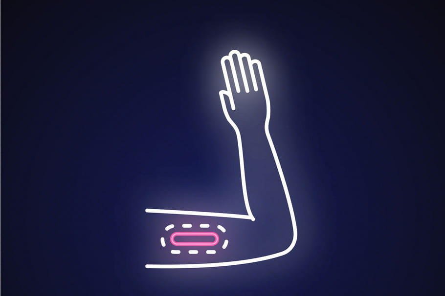 Implant Nexplanon: l'ANSM rappelle les règles de pose et de retrait