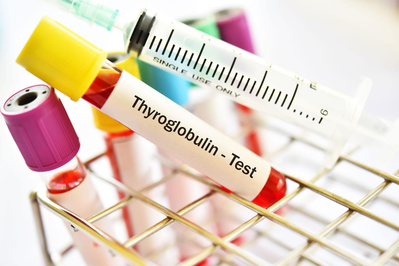 Thyroglobuline: basse ou augmentée, interprétation des résultats
