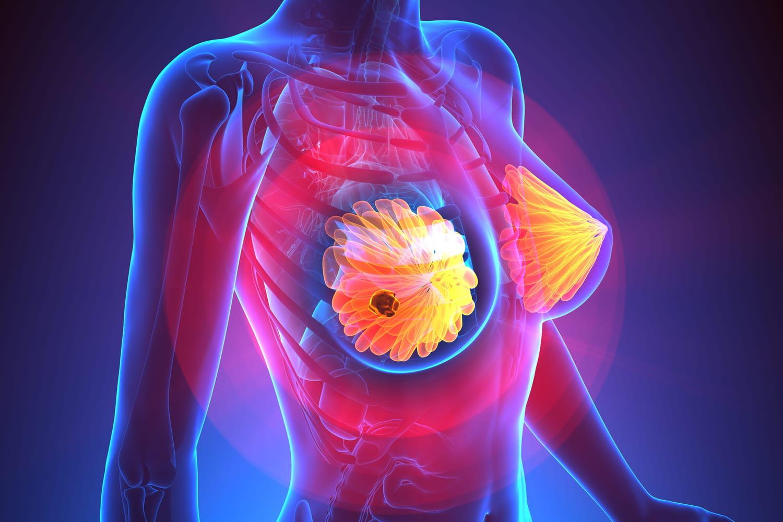 Quels signes quand un cancer du sein métastase?