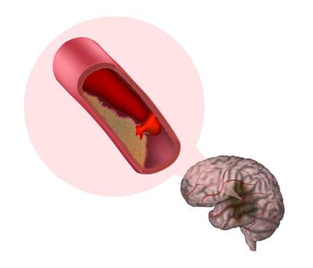 Formation d'un caillot au niveau d'un vaisseau sanguin du cerveau