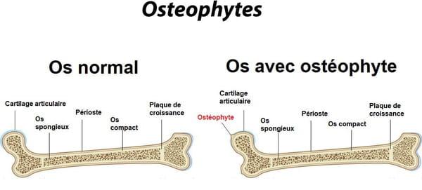 Schéma d'un os avec ostéophyte