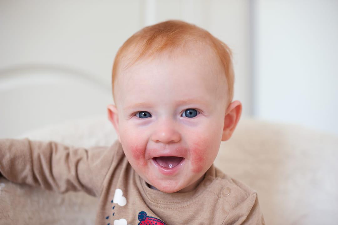 dermatite bebe visage papilomatoza într-un tratament pentru copii