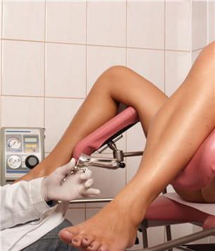 examen gynécologique.