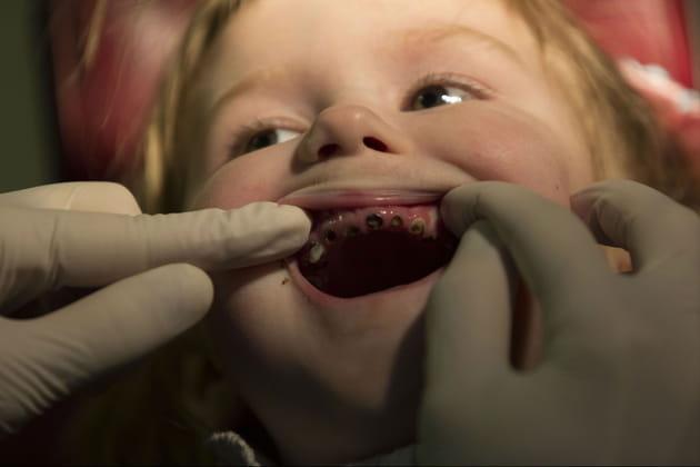Iana, 4 ans, se fait examiner